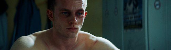 Andi nach einem Boxkampf. Er schaut traurig, das linke Auge ist blutunterlaufen.